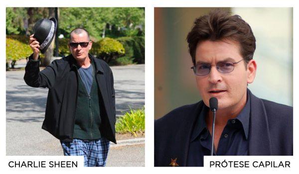 prótese-capilar-famosos-torriton-charlie-sheen