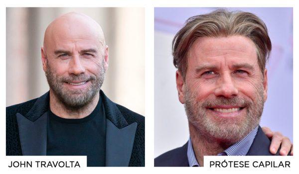 prótese-capilar-famosos-torriton-john-travolta